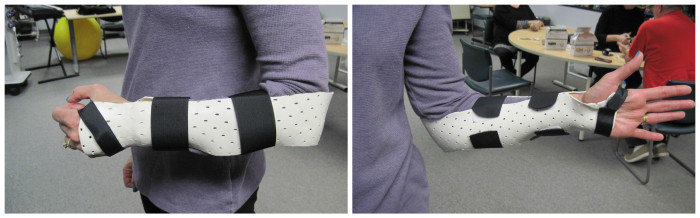The Sugar Tong orthosis seen from two angles.